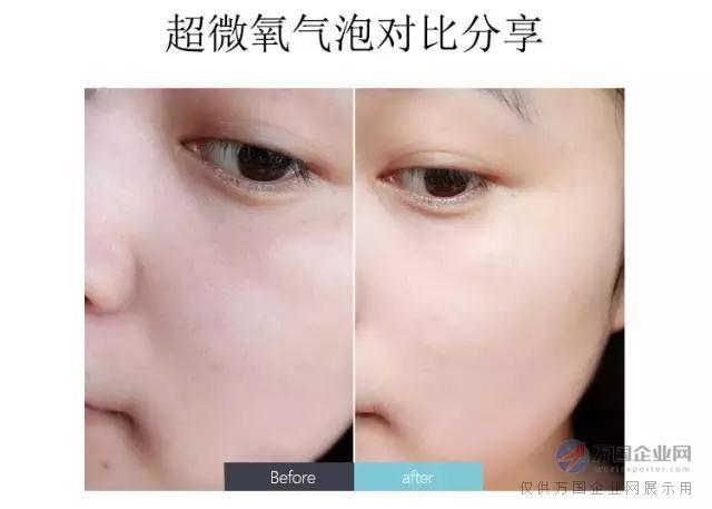 皮肤管理|小气泡深层清洁护理